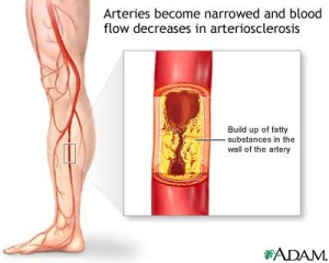 Arterial Disease Singapore