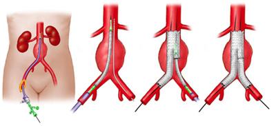 Endo Vascular Aortic Aneurysm Repair