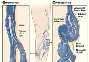 about-varicose-veins