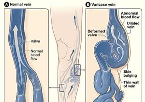 about-varicose-veins