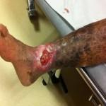 Leg Ulcer2