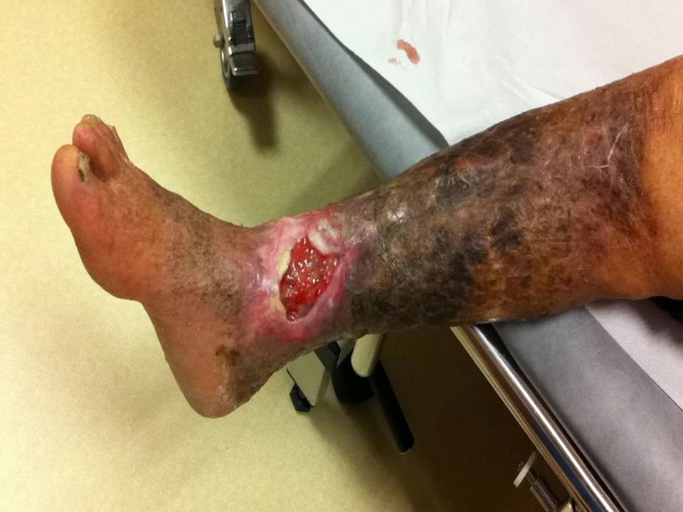 Leg ulcer images, picture of venous and arterial leg ulcers